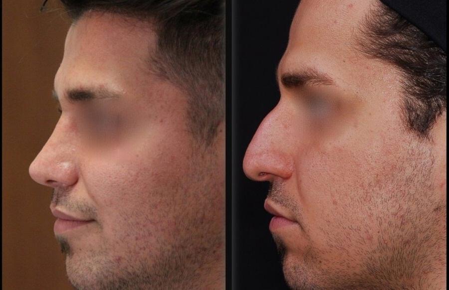 ردپای افراد غیر پزشک در جراحی زیبایی بینی