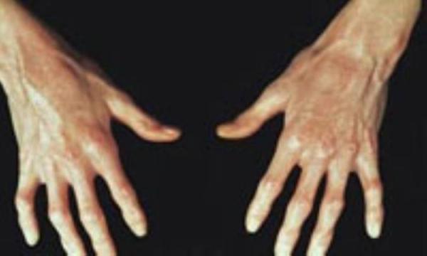 می دانید اسکلرودرما چیست؟